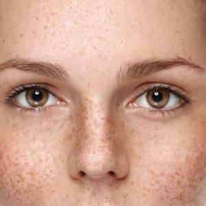 i migliori trattamenti contro macchie del viso couperose e rosacea