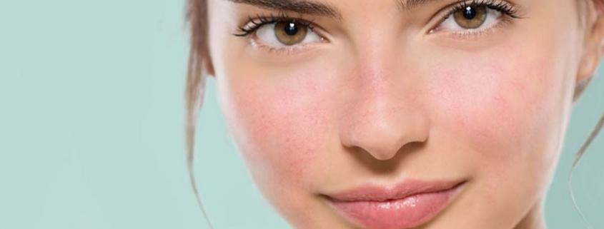 Capillari sul volto