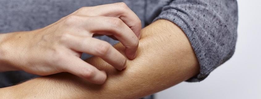 Arrossamenti E Squame Sulla Pelle E Psoriasi Victoria Medical Center